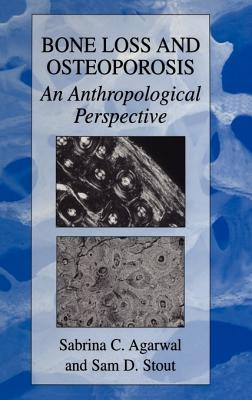 Image for Bone Loss and Osteoporosis: An Anthropological Perspective