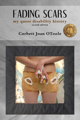 Image for Fading Scars: My Queer Disability History, 2nd Edition